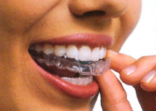 Прозрачные капы для зубов