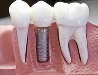 Услуга протезирования с опорой на импланты