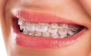 sapphire-braces