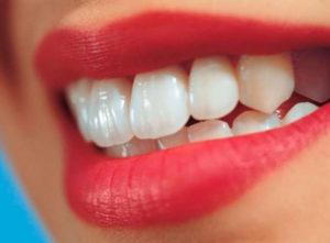 Услуга восстановления зубов в Нижнем Новгороде