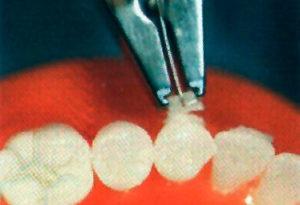 material_na_poverhnosti_zuba
