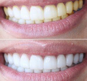 otbelivanie_zubov_do_i_posle