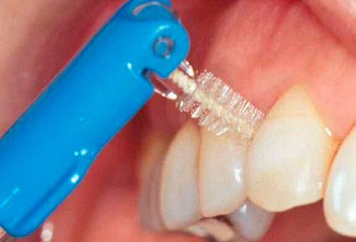 Чистка зубных имплантов
