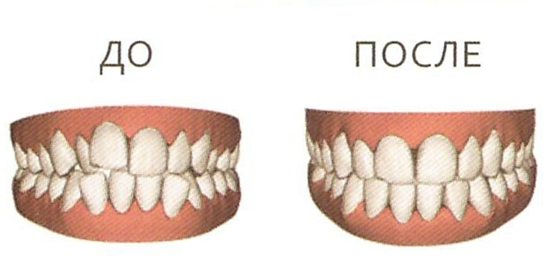 www.breketsistem.ru