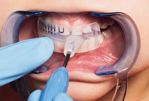 Детские капы для выравнивания зубов