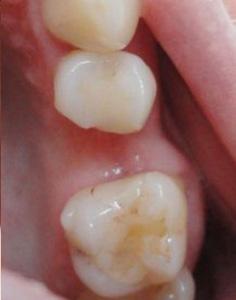 1_otsutstvie_odnogo_zuba