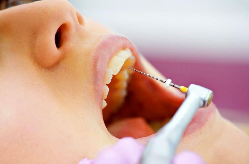 Удаление зубного нерва в Нижнем Новгороде