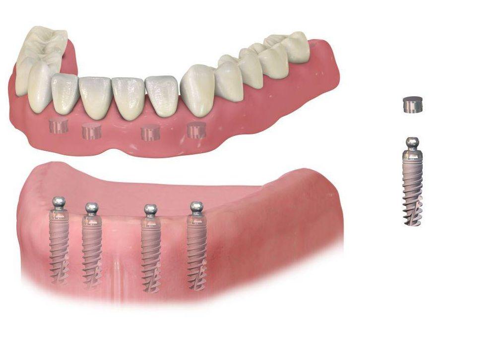 Мини-импланты зубов в Нижнем Новгороде