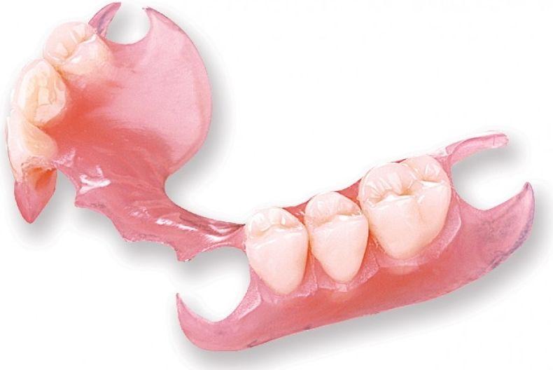Пластиночные съемные зубные протезы