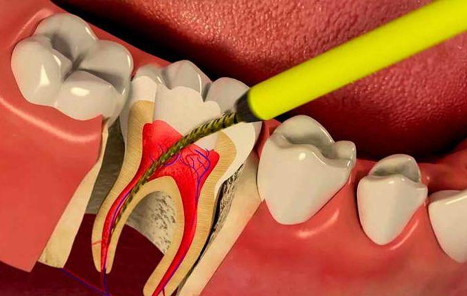 Пломбирование каналов зубов в Нижнем Новгороде