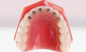 Экспресс-метод исправления прикуса зубов брекетами (частичная дуга)