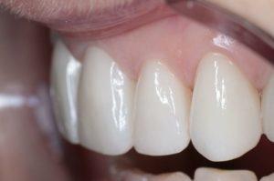 Установка циркониевых коронок (диоксид циркония) для зубов