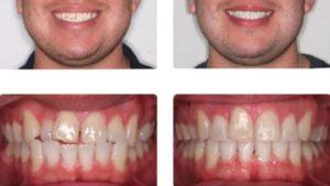 Выравнивание зубов у взрослых в стоматологии